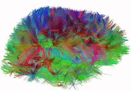 Diffusion spectrum image shows brain wiring in a healthy human adult. The thread-like structures are nerve bundles, each containing hundreds of thousands of nerve fibers. Source: Source: Van J. Wedeen, M.D., MGH/Harvard U. To learn more about the government's new connectome project, click on the brain.
